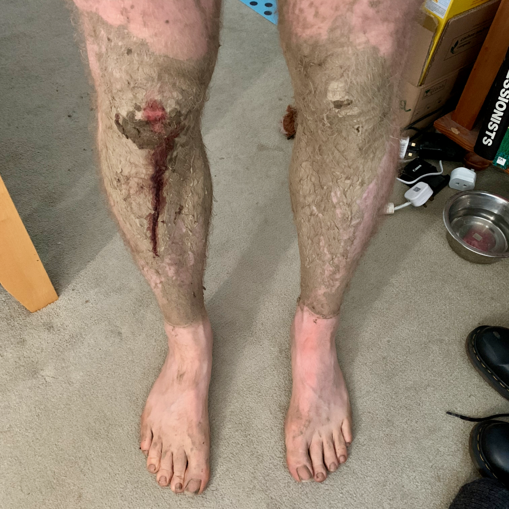 Post Christmas Day Royal Tunbridge Wells Park Run. Blood and mud from falling over